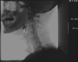 歯科用レントゲン検査 写真