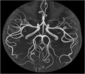 MRIによる血管の画像