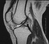 MRIによる関節の画像